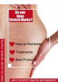 How to Remove Stretch Marks Naturally With Home Remedies and Creams