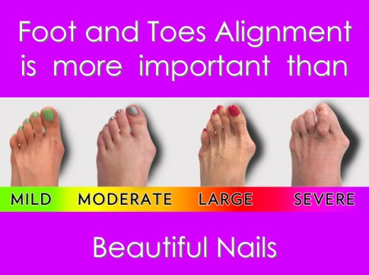 Learn to realign your feet and toes to avoid bunions.