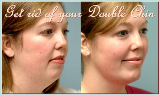 It is possible to get rid of a double chin through exercise. No need for surgery.