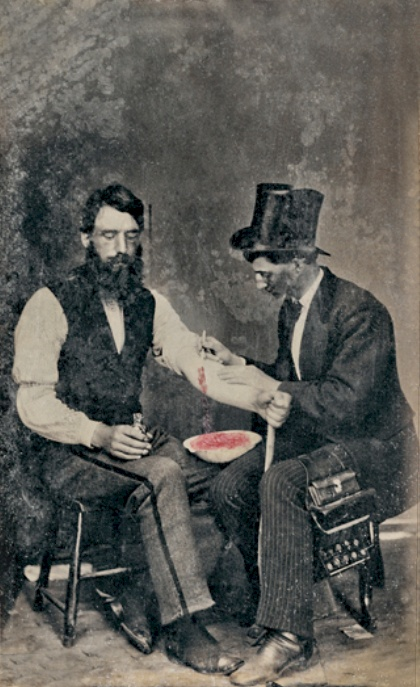 18th century Bloodletting
