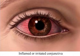 131194_f260 Eye, inflammation of the (ophthalmia):