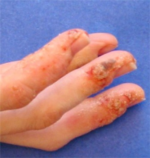 Eczema on Fingers--Itchy and Painful