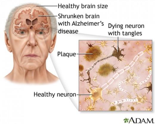 Brain affected by Alzheimer's disease