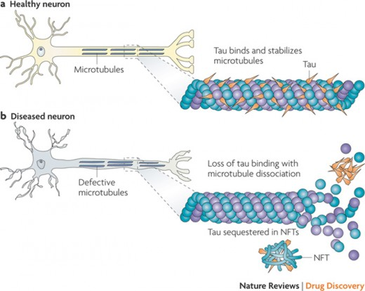 Difference between healthy neuron and neuron affected by tau protein