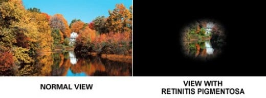 Retinitis pigmentosa is a degenerative eye disease of the retina that causes severe vision impairment