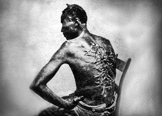 Tree On The Back Of A Slave.