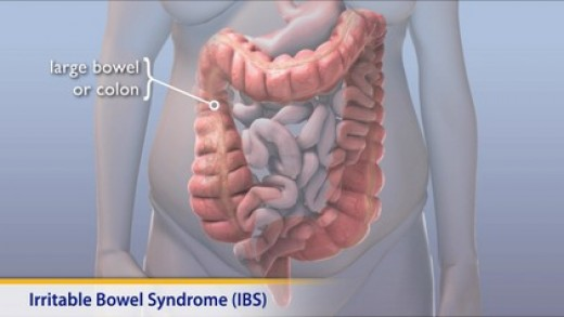 Diagram of large bowel and colon