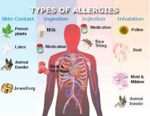 Advice on Allergies and Hay Fever