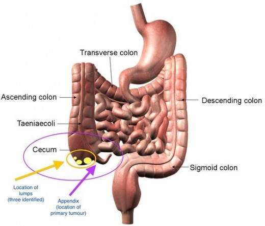 disorders in Intestine