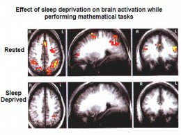 Inadequate Sleep Affects the Brain