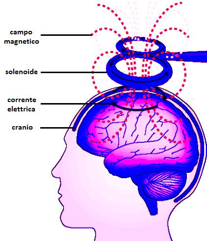 Transcranial Magnetic Stimulation. The photo shows how this work through the brain.