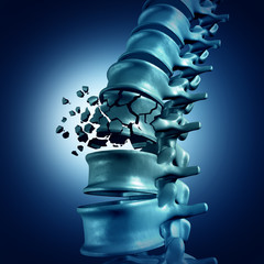 A complete breakage of the spine is possible when bones become weak and brittle.