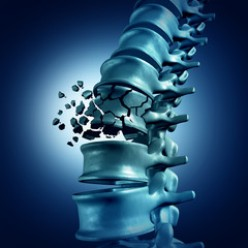 Osteoporosis and Bone Loss Can Be Reversed Naturally