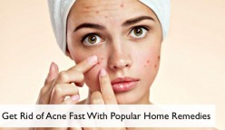 Get Rid of Acne Fast With These Popular Remedies