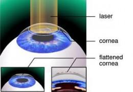 PKR Eye Surgery