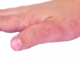 How to treat eczema patches on skin daily