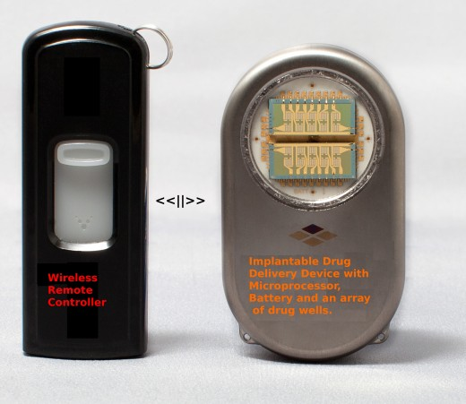The implantable drug delivery device is programmed by the wireless control unit to deliver drugs via a group of 'wells' within the device. The delivery can be made using a schedule or in response to body signals. Various models are available.