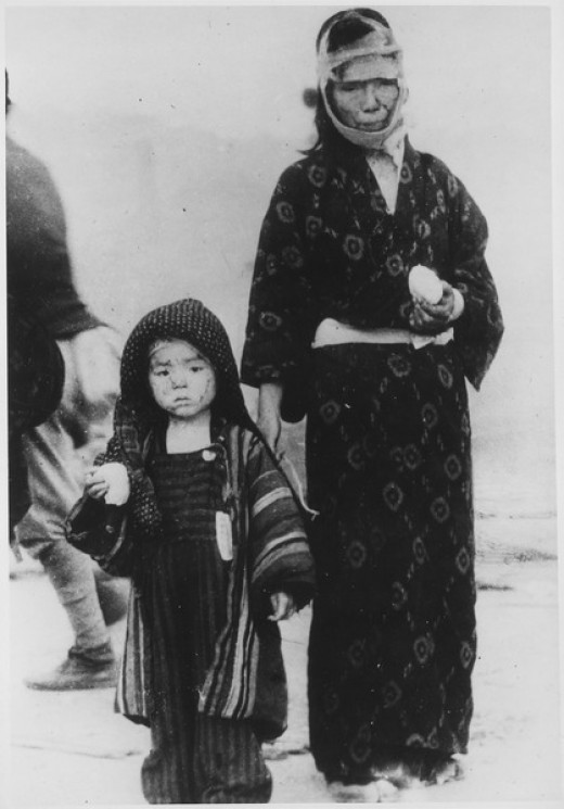 Before noon on August 10, 1945, a mother and her son have received a boiled rice ball from an emergency relief party. One mile southeast of Ground Zero, Nagasaki