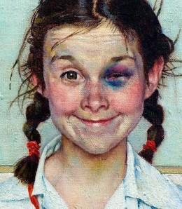 """Shiner"" (Girl with Black Eye) - Norman Rockwell, 1954, American illustrator"