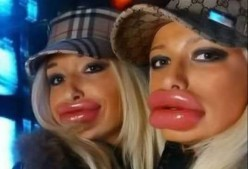 Don't you think lips are ridiculous so many women are getting today?