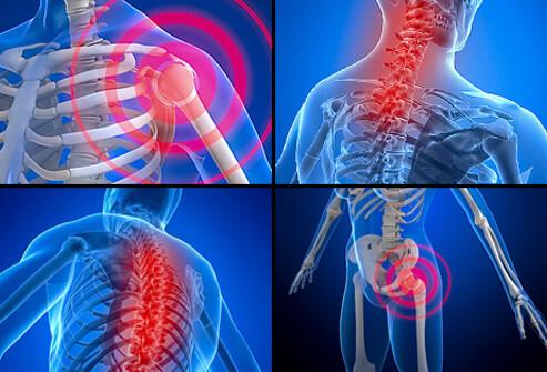 Fibromyalgia Points of Pain