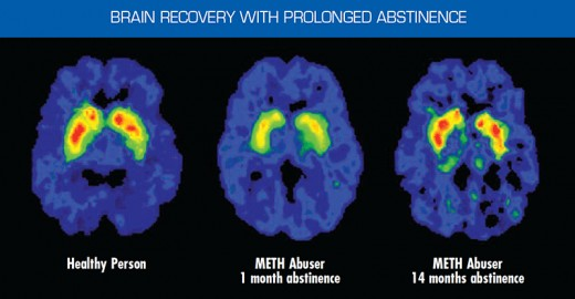 Brain scans of subject who stayed abstain from methamphetamine without treatment or 12 step program