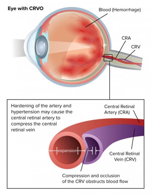 Anatomy of CRVO