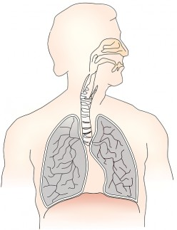 A Brief Overview of Cystic Fibrosis