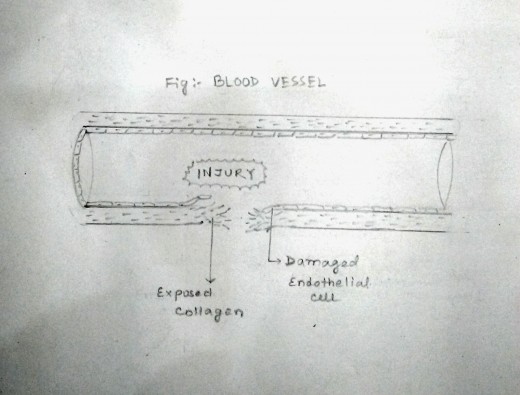 Blood vessel suffers injury. This causes the blood which normally doesn't come in contact to collagen due to endothelial lining, now gets exposed to the collagen layer.