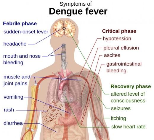 Dengue fever symptoms in the human body.