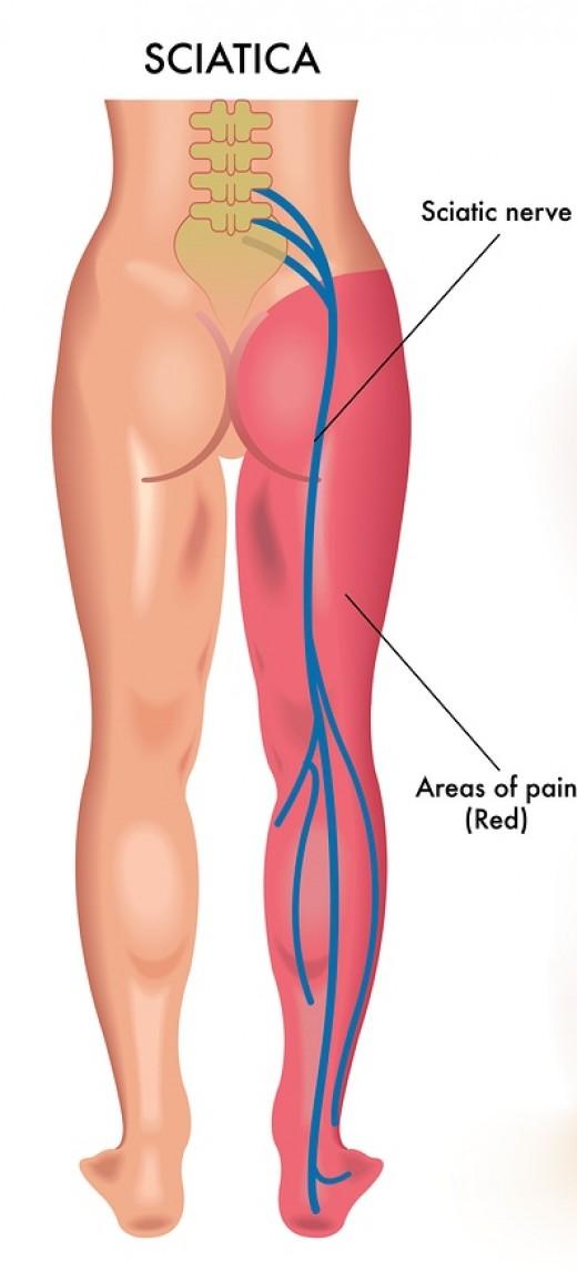 from Daxton transgender leg pain