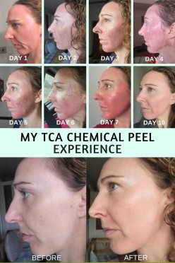 My TCA Chemical Peel Experience