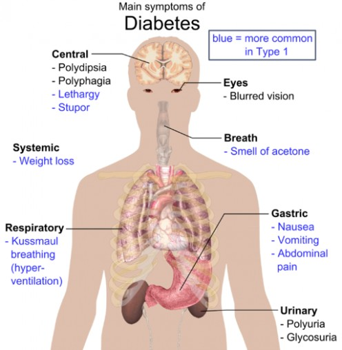 Overview of the most significant possible symptoms of diabetes