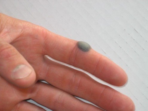A blood blister.