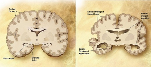 Combination of two brain diagrams in one for comparison. In the left normal brain, in the right brain of a person with Alzheimer's disease
