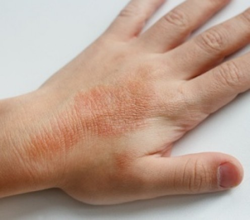 Skin rashes due to mold