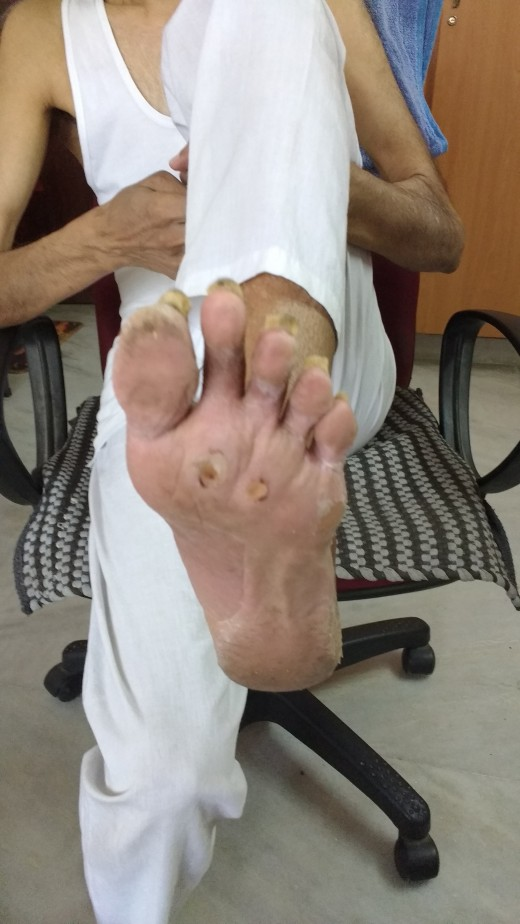 The operated left foot completely healed after 15 days
