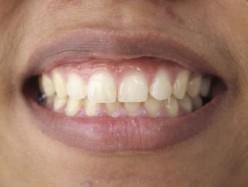 6 Causes Of Brown Teeth