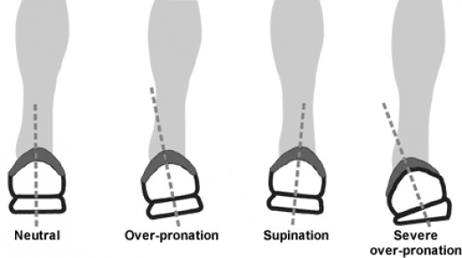 The right shoes can help correct for pronation and supination.