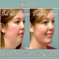 Two Exercises to Get Rid of Your Double Chin