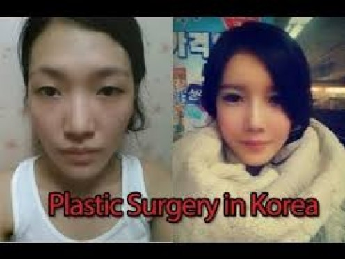 Men and women often get plastic surgery in South Korea, a place that puts a premium on looks.