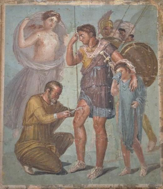 Roman Capsarii - Battle Field Medics