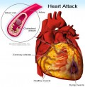 Signs and Symptoms: How You Can Know if You are Having a Heart Attack!