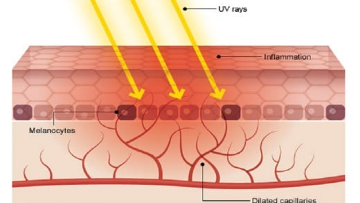 What happens to the skin during a sunburn. The energy from ultraviolet radiation can damage molecules in the skin to react, causing the skin to turn red and blister as it burns.