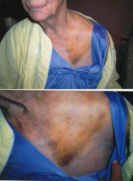 The impact caused Mama's seat-belt to bruise her chest severely.