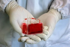8 Myths About Cord Blood Banking