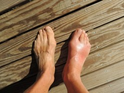 Food Prescriptions to Treat Gout