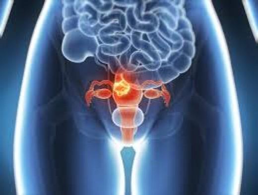 Thyroid disease and Menstruation