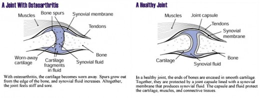 Unhealthy Cartilage vs Healthy Cartilage