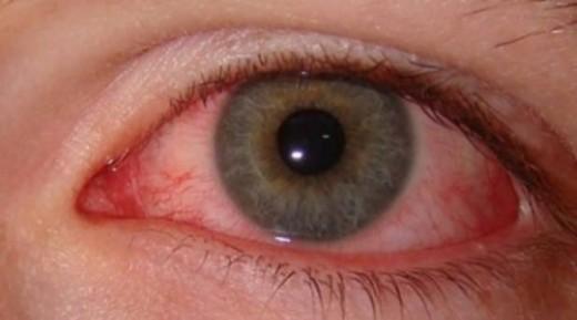 Pink Eye Writer